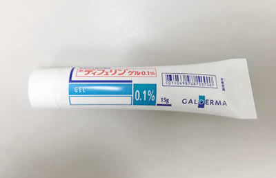 acne02